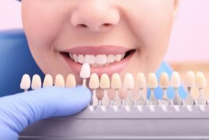A color scale being held to a woman's smile to determine the shade of her teeth
